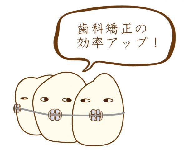 歯科矯正の効率アップ