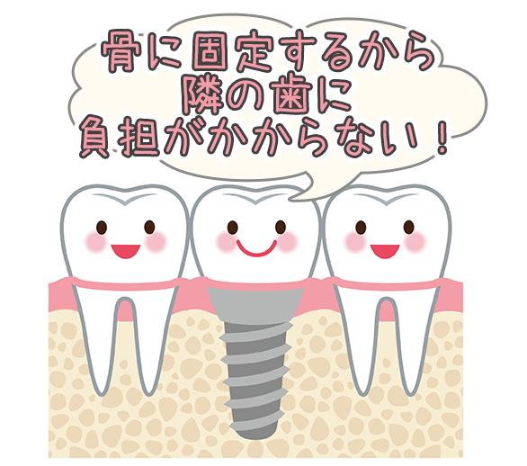 骨に固定するから隣の歯に負担がかからない