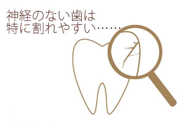 神経のない歯は割れやすい