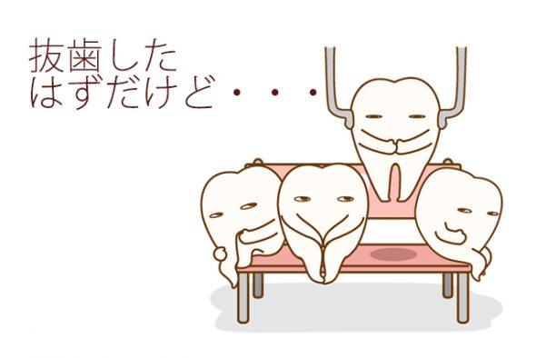 抜歯したはずの歯