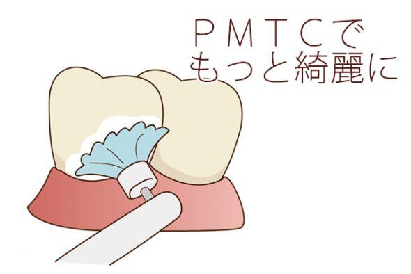 PMTCでもっと綺麗に